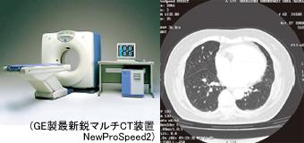 GE製マルチスキャンCT装置 NewProSpeed2